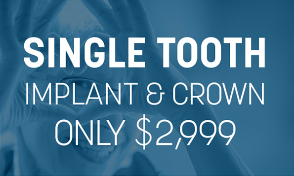 special offers for single tooth implant and crown