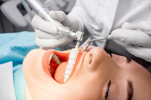 teeth cleaning katy tx