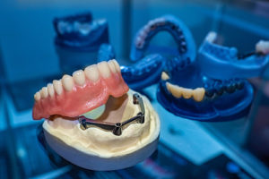 pairs of dentures in a dentist office